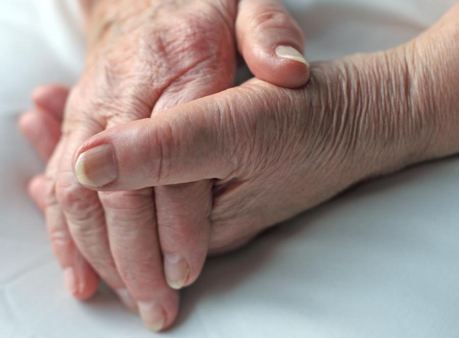 Mit nr 3. Choroba Alzheimera prowadzi do śmierci