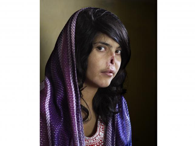 """Zwycięskie zdjęcie autorstwa Jodi Bieber (Institute for Artist Management), wykonane dla tygodnika """"Time"""". Przedstawia 18-letnią Afgankę z nosem obciętym przez męża"""