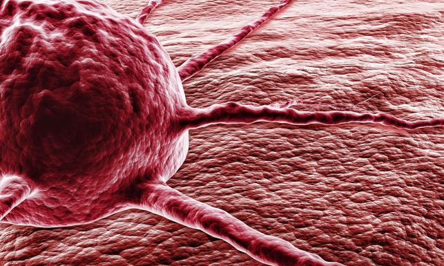 Guz nowotworowy