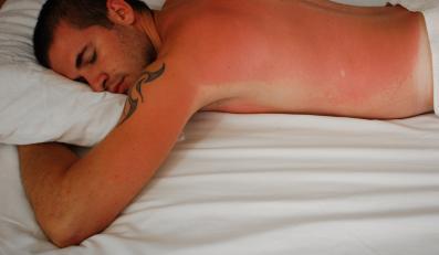 Oparzenie słoneczne to odpowiedź zapalna organizmu na promieniowanie UVB
