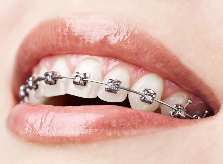 MIT 7 - Noszenie aparatu ortodontycznego sprawia ból