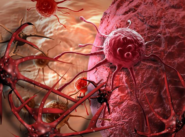Rak płuca - kto choruje najczęściej?