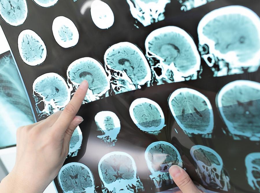 Lekarz ogląda skan mózgu