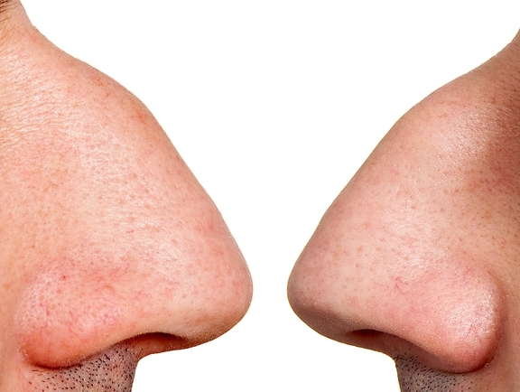 Nos mężczyzny