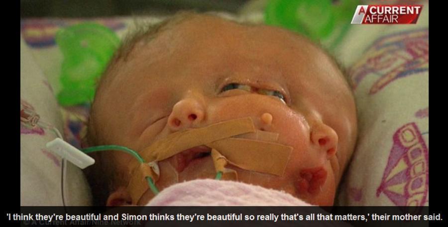 """Dziecko z dwoma twarzami (""""Daily Mail"""")"""