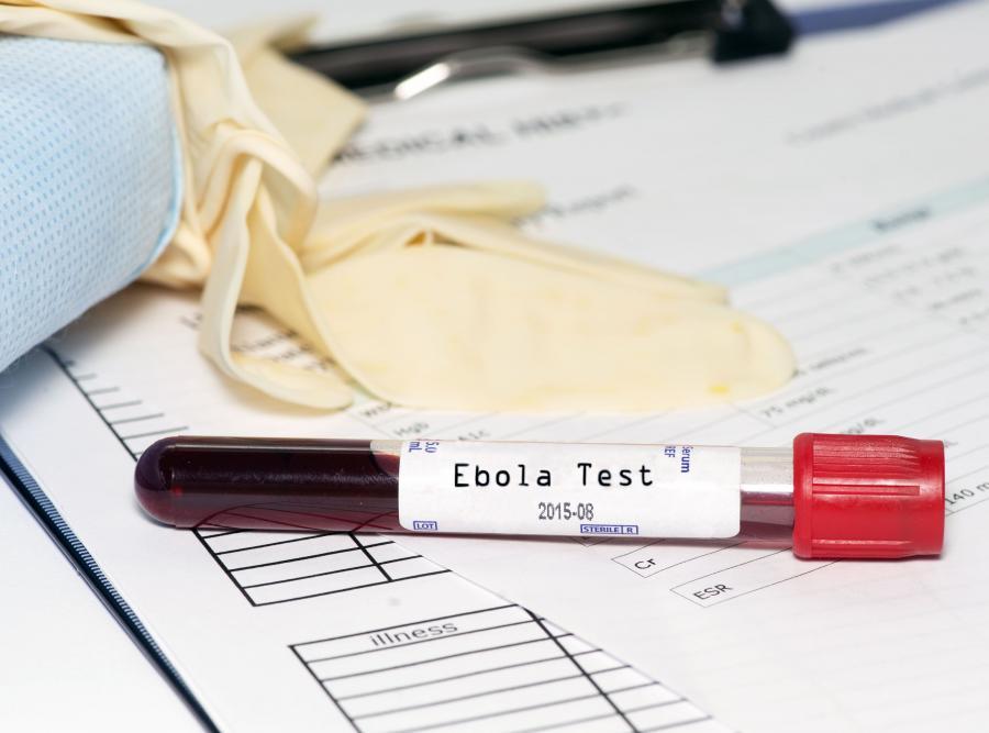 Test krwi na ebolę